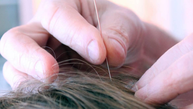 L'Acupuncture, comment ça marche ?