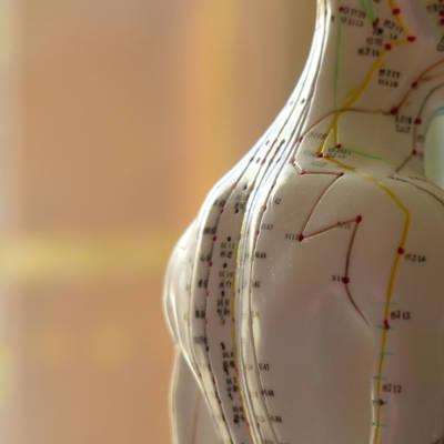 Méthode-d'équilibrage-Acupuncture